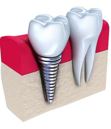 Dental implant - implanted in jaw bone. Isolated