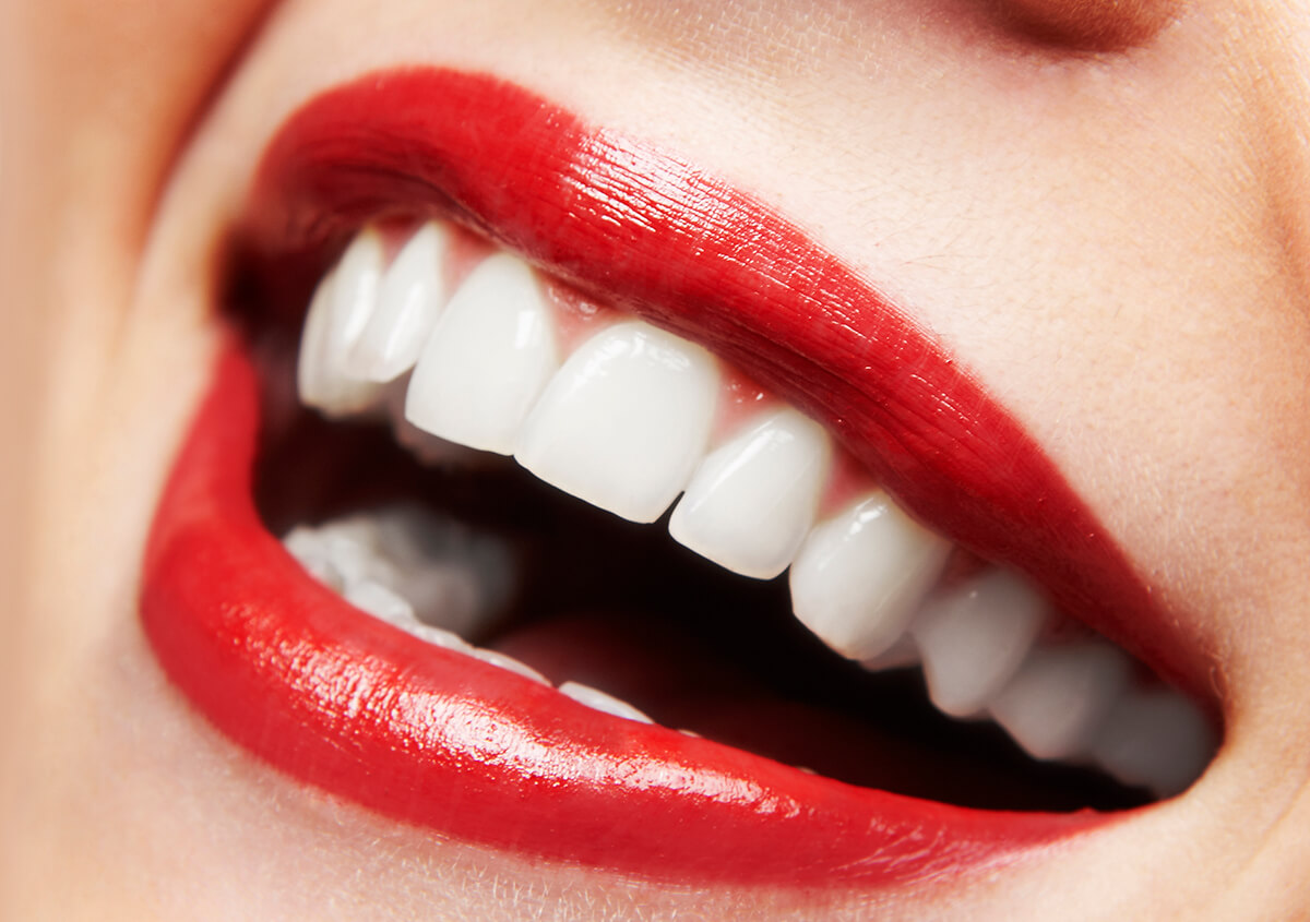 Porcelain Dental Crowns for a beautiful and natural smile